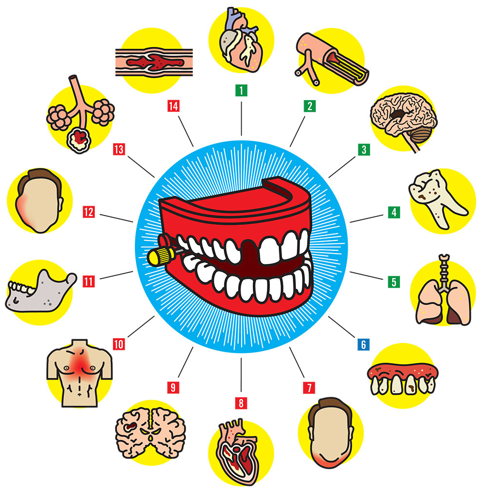 DID YOU KNOW THAT THE MOUTH IS ONE OF THE PRINCIPAL MEANS OF SPREADING OF INFECTIONS AND DISEASES TO THE BODY?