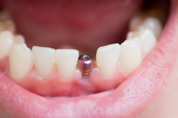 What Are Immediately Loaded dental implants?