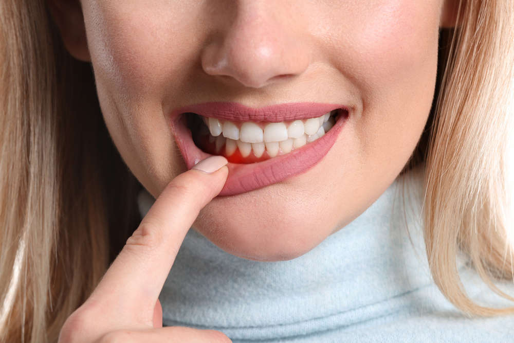 Do you know what gingivitis is?  See how to handle the problem!